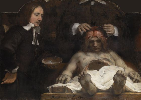Rembrandt: The Anatomy Lesson of Dr. Jan Deyman. Fine Art Print/Poster. Sizes: A4/A3/A2/A1 (004291)